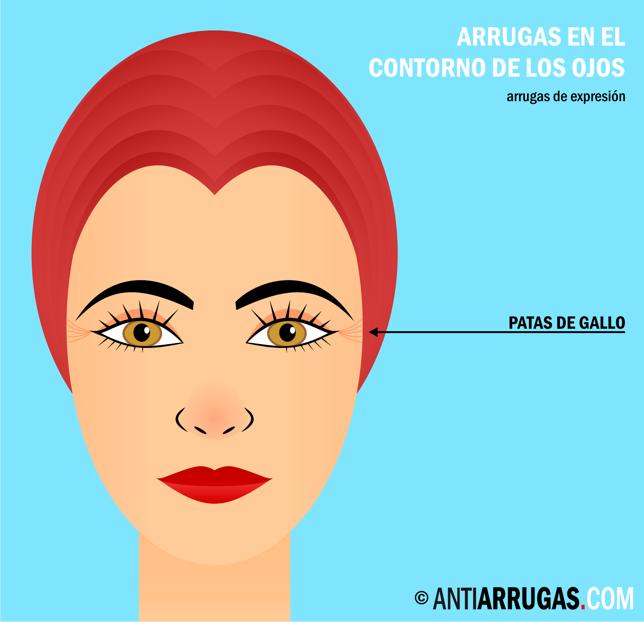 Como librarse de la rubefacción y el hinchazón de los ojo