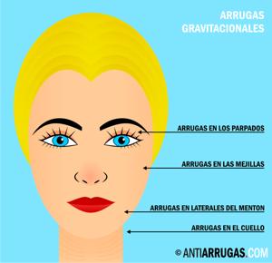 arrugas gravitacionales